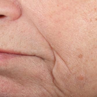 Efeito de máscaras Botox da pessoa